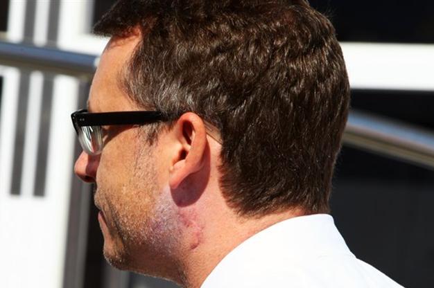 Eric Lux con el cuello ya cicatrizado